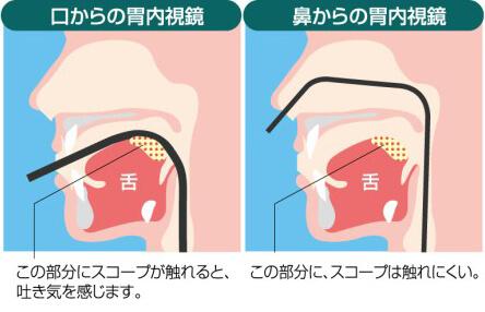 口からの胃内視鏡 鼻からの胃内視鏡